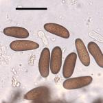 Eliptic, dark brown conidia produced by Diplodia sapinea (Scale bar = 40 µm)